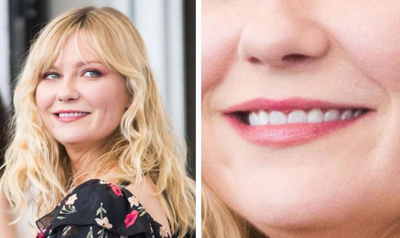 Οι γυναίκες με λεπτά χείλη, όπως η Kirsten Dunst, συνήθως είναι μοναχικοί και συνεσταλμένοι χαρακτήρες. Η εσωστρεφής προσωπικότητά τους υποδηλώνει επίσης την αυτονομία τους.