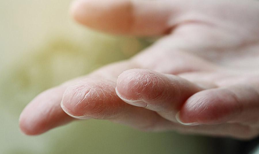 Η καθημερινή και συχνή χρήση απολυμαντικών μπορεί πολύ εύκολα να ξηράνει την επιδερμίδα και να της προκαλέσει σοβαρές βλάβες. Μην ξεχνάτε μία καλή ενυδατική κρέμα χεριών