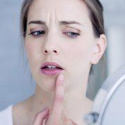Επιχείλιος έρπητας: Προστασία και θεραπεία