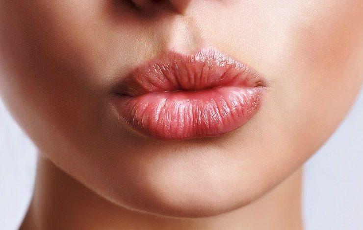 Πώς θα σώσετε τα σκασμένα χείλη σας!